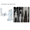 Image sur Digital radiography (DR) equipment for medical use